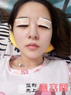 杭州做双眼皮好不好?有没有失败案例