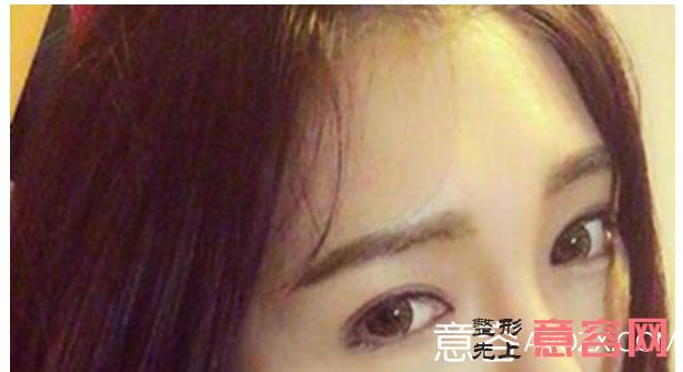 四川铜雀台做眼综合怎么样?多少钱