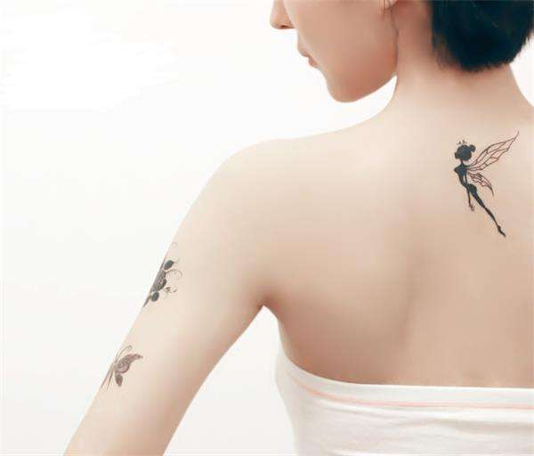 激光洗纹身