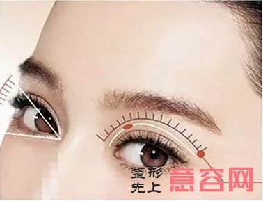 做双眼皮失败有哪几种形式?该如何补救