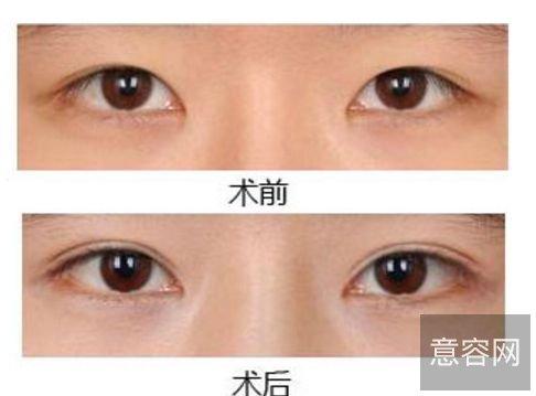 上海九院苏薇洁做双眼皮真实案例