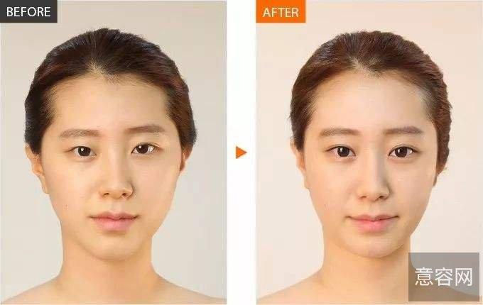 上海九院苏薇洁医生做全切双眼皮真实案例